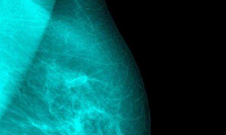 Lékaři potvrdili první přenos rakoviny prsu skrze transplantaci